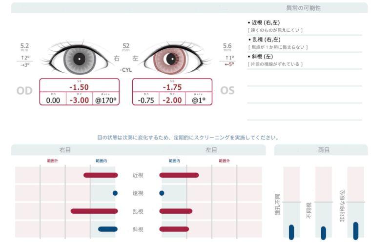 SpotVisionScreener20181025